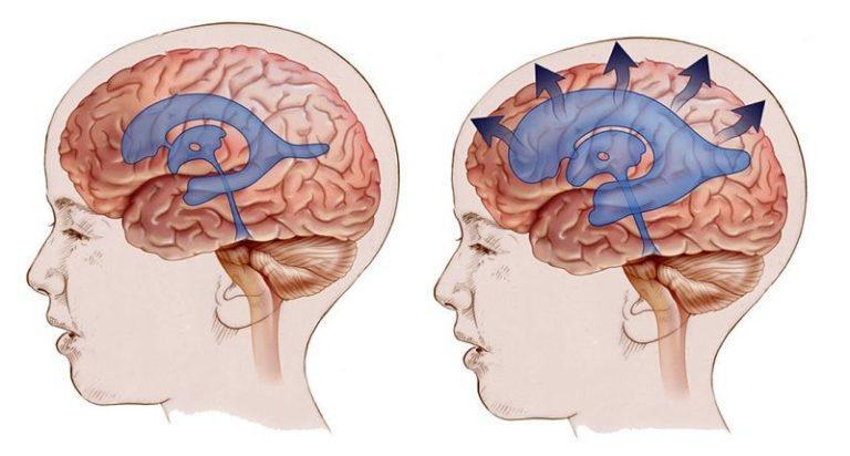 Шумы в голове повышенное внутричерепное давление