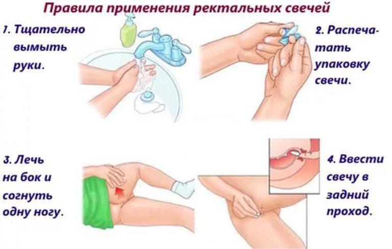 Правила применения ректальных свечей