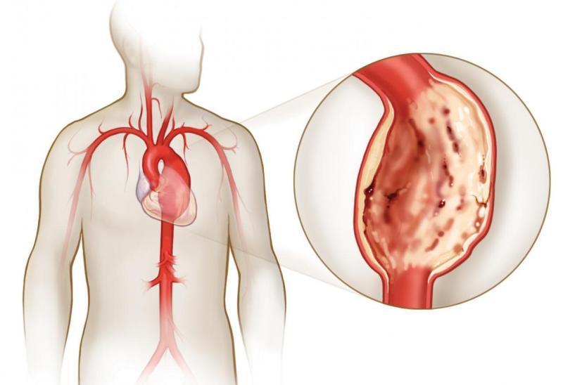 Пролапс митрального клапана: 1, 2, 3 степень, лечение ПМК