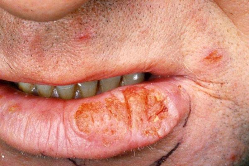 рак на губах