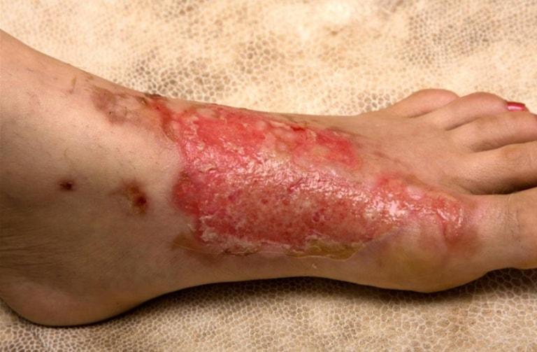 Рана на ноге при диабете