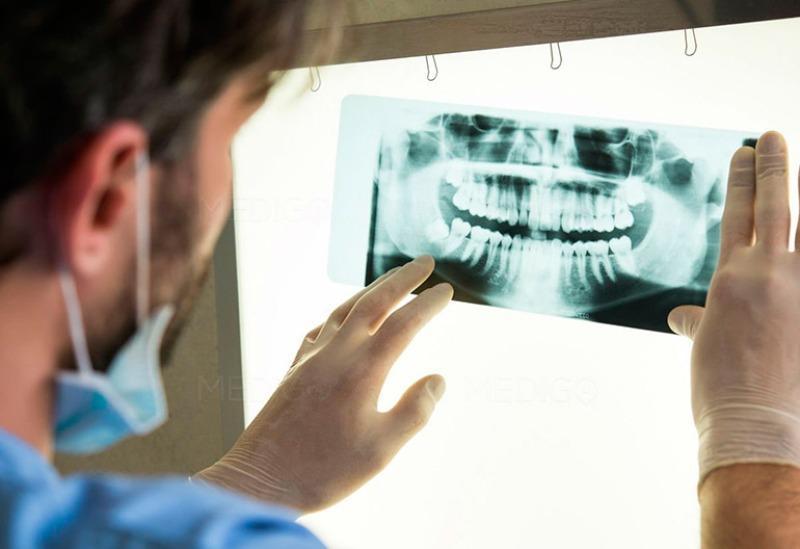 Рентген зубов