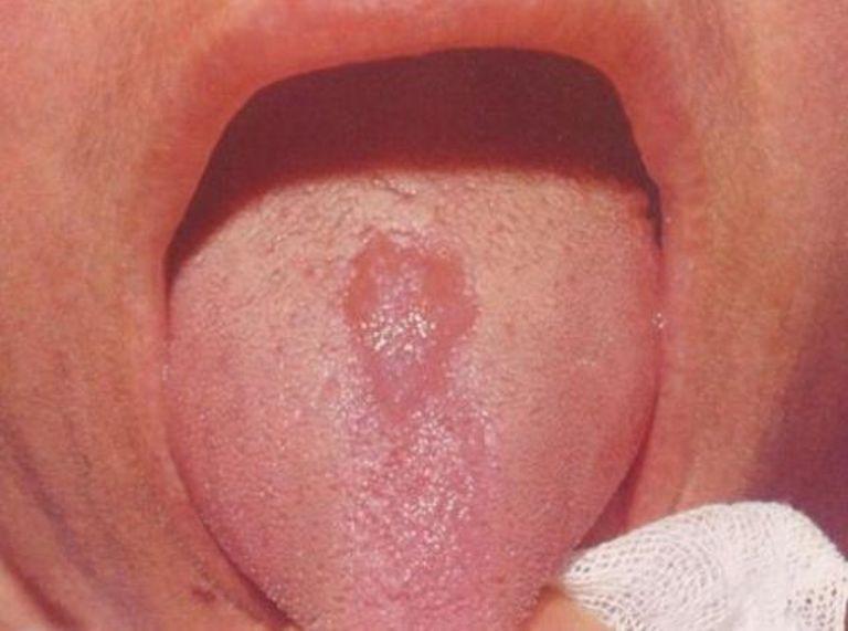 Ромбовидная форма глоссита