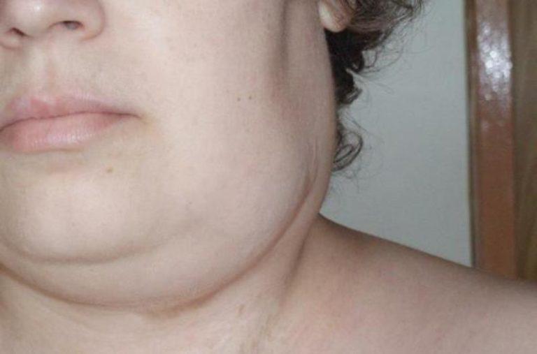 Опухла шея с правой стороны болит
