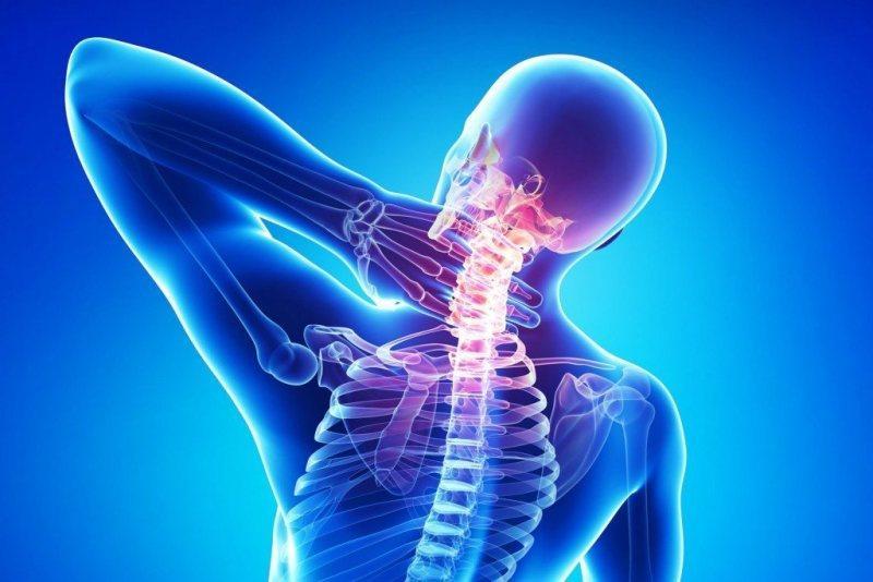 Цефалгия на фоне шейного остеохондроза