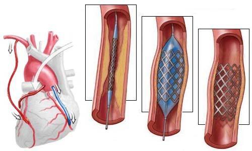 Шунтирование сердца – что это такое, сколько живут после операции ...