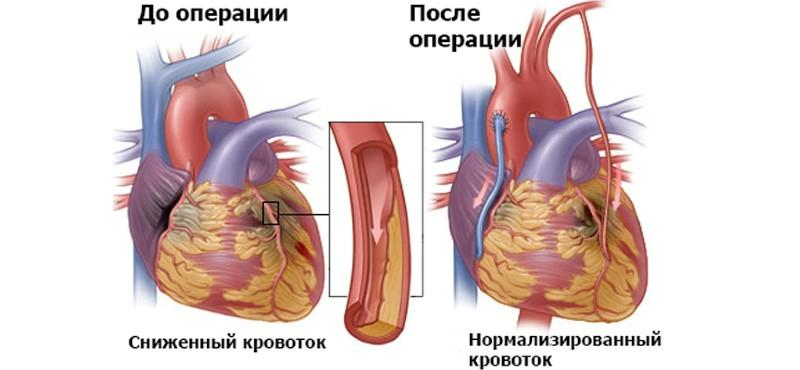 До и после шунтирования сердца