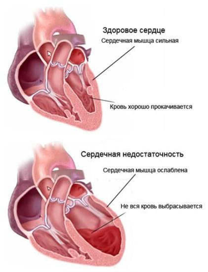 Учащенное сердцебиение во время секса