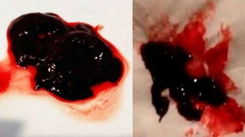 Сгустки крови во время менструации