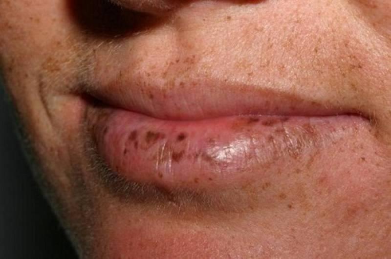синдром Пейтца-Егерса