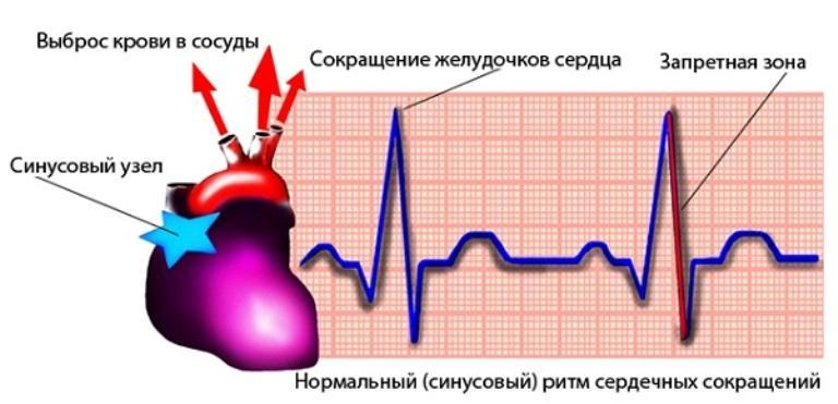 Синусовый ритм сердечных сокращений
