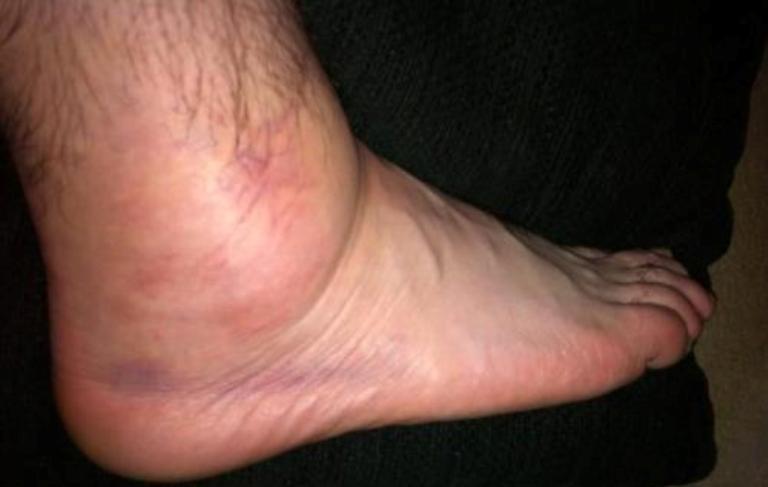 Скопление жидкости в ноге