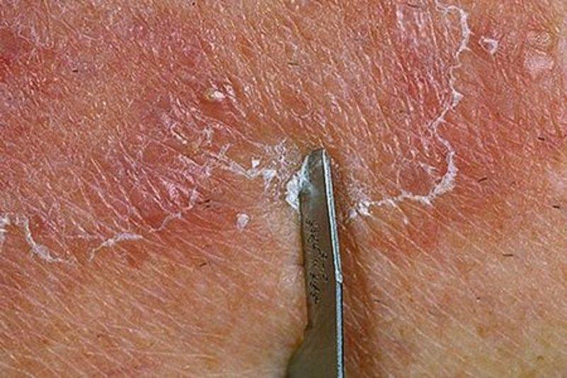 соскоб кожи