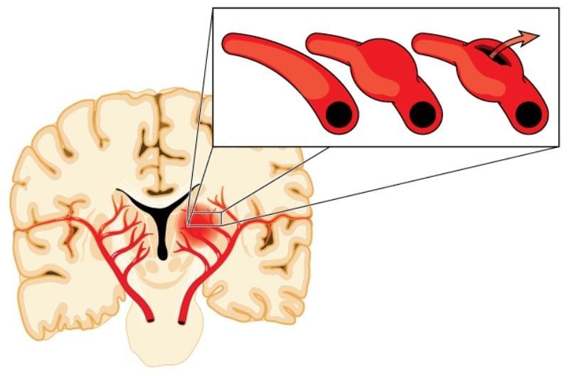 Спазм черепных артерий