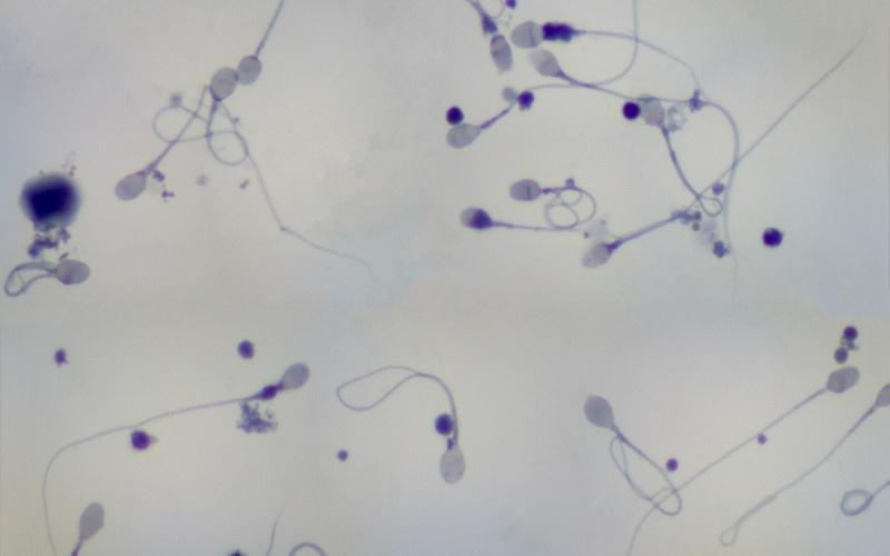 Сперматозоиды под увеличением