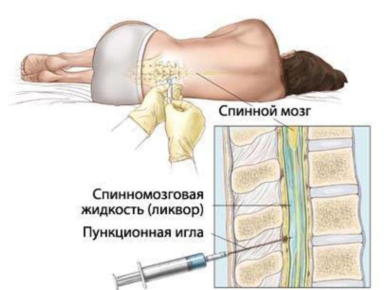 спинальная пункция