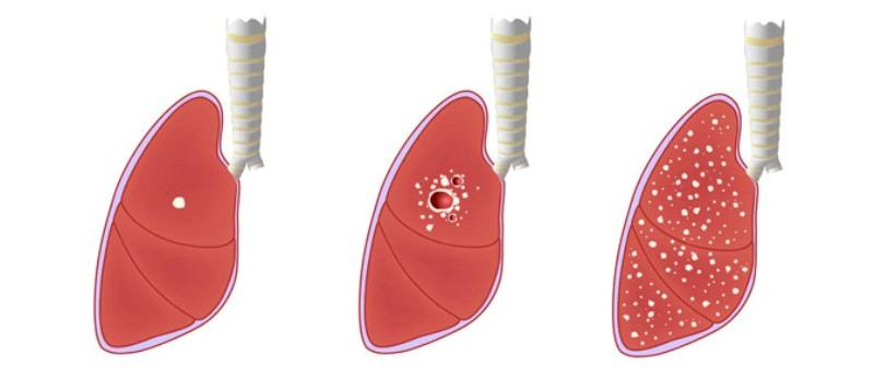 Стадии развития туберкулёза