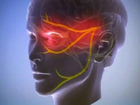Застужен лицевой нерв симптомы и лечение если продуло и болит