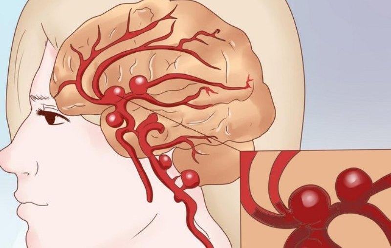 причины высокого холестерина в крови у женщин