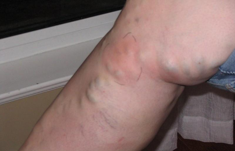 Тромбофлебит на ноге