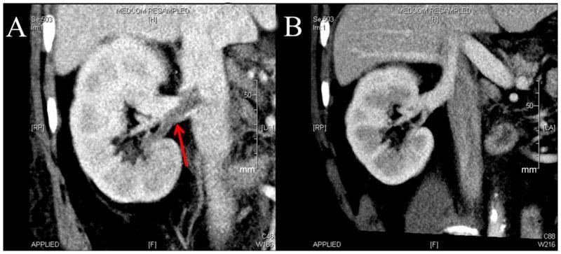 Тромбоз почечной артерии