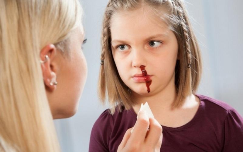 У ребенка идет кровь из носа