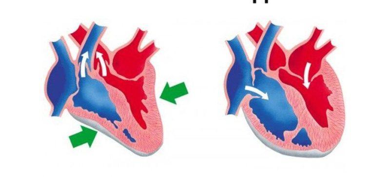 Верхнее и нижнее артериальное давление