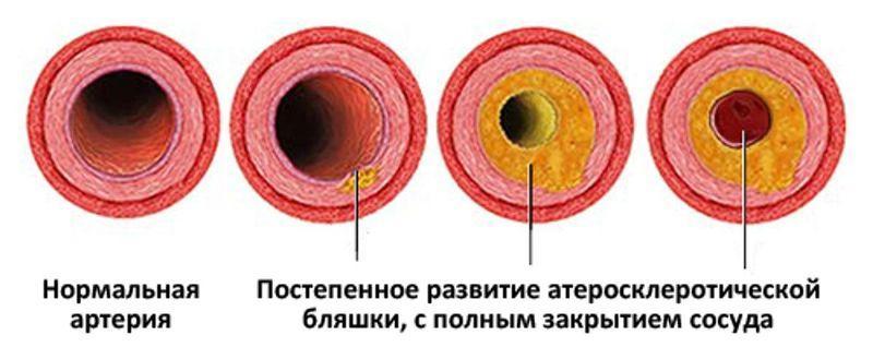 Виды атеросклеротических бляшек