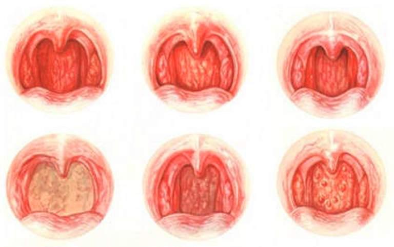 Виды назофарингита