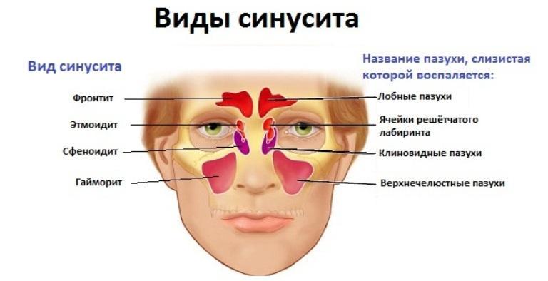 Синусит у ребенка чем лечить
