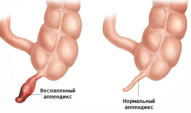 Воспаленный и нормальный аппендикс