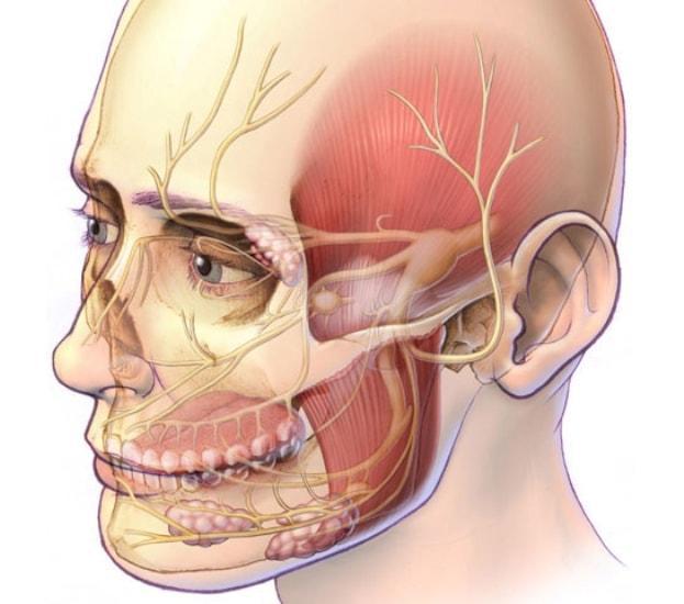 Воспаление Тройничного Нерва Симптомы И Лечение Фото Паралич Лицевого Нерва У Животных