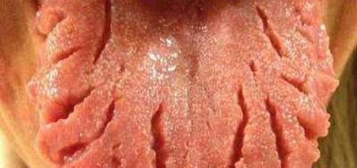 Почему язык в трещинах?