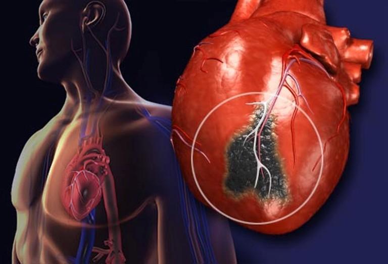 Заболевание миокорда