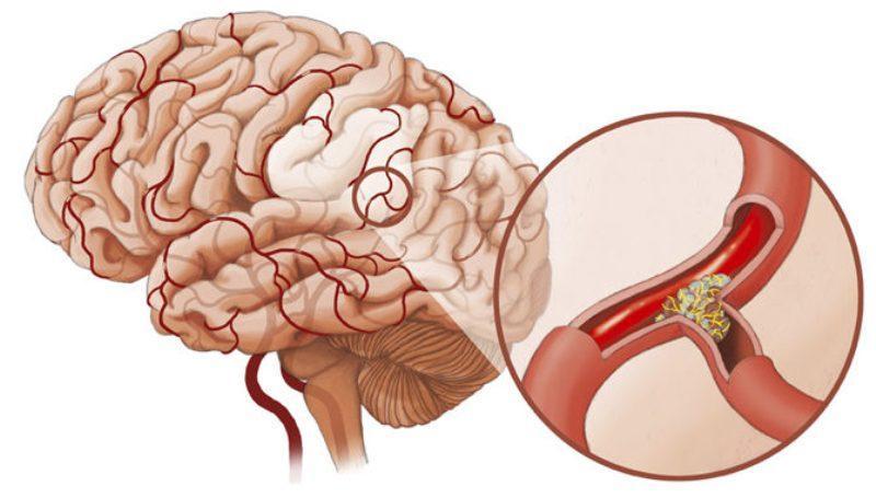 Закупорка сосудов головного мозга