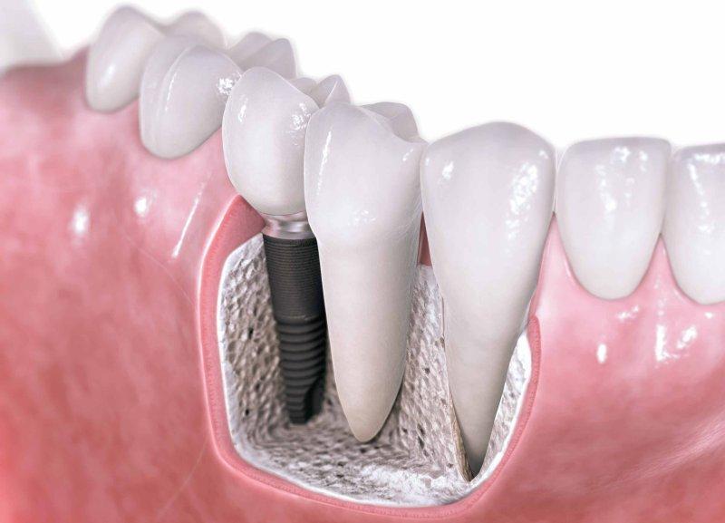 сколько этапов имплантации зубов