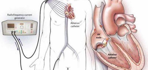 РЧА (радиочастотная абляция) сердца