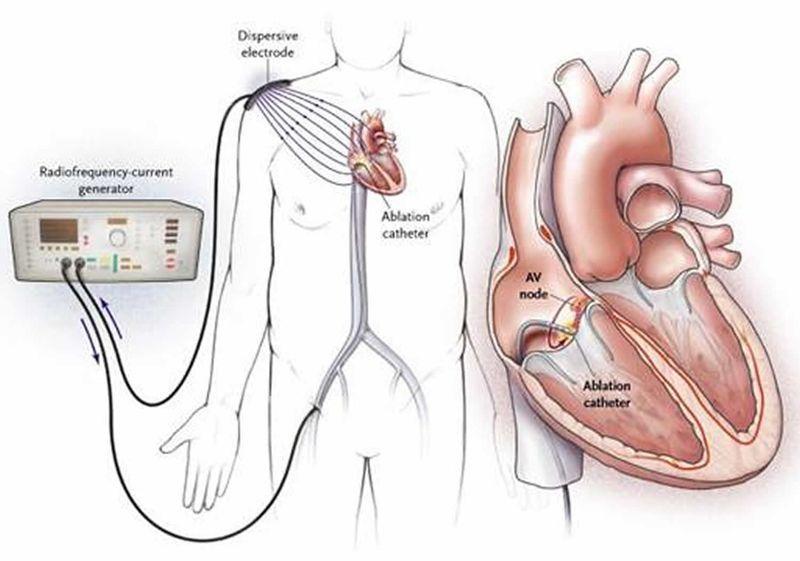 Радиочастотная абляция сердца при мерцательной аритмии. Операция РЧА. Катетерная абляция