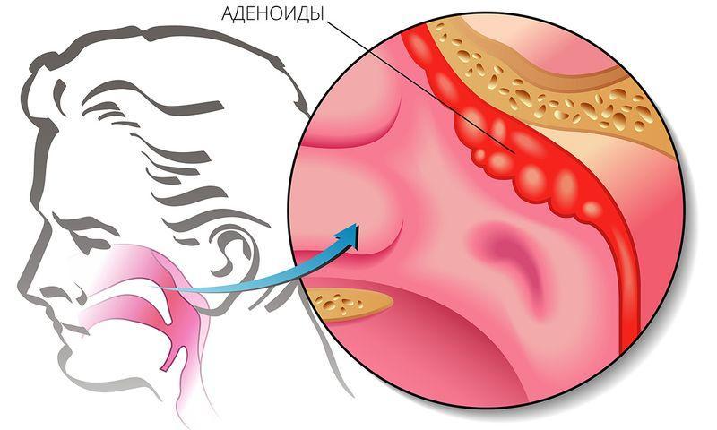 Как происходит удаление аденоидов у детей