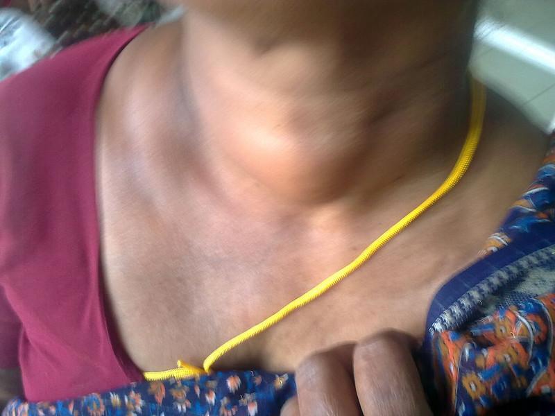 Аденома щитовидной железы