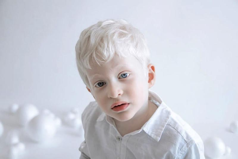 Ребёнок альбинос
