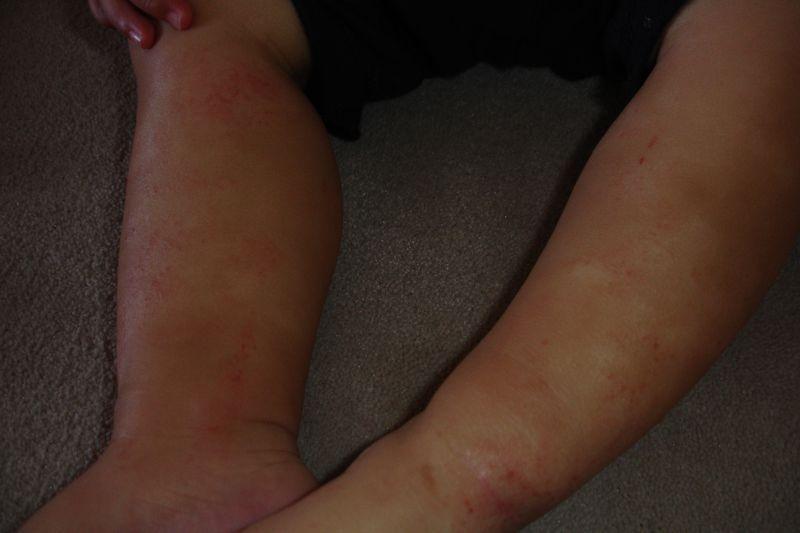 Аллергия на фенхель