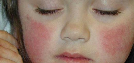 Аллергия на лице – чем лечить?