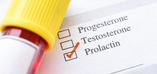 Как правильно сдать анализ на пролактин?
