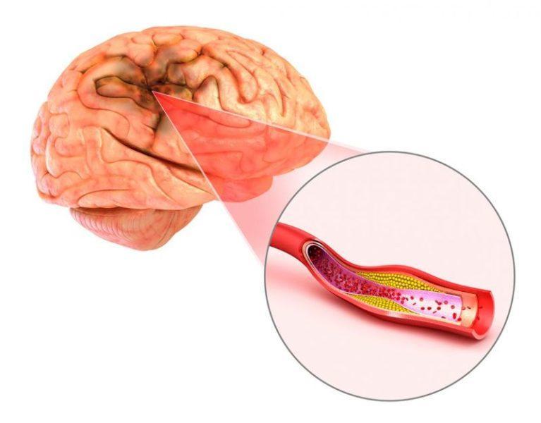 Разрыв аневризмы головного мозга симптомы