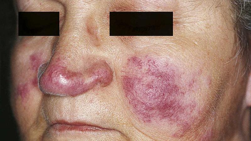 Признаки псориаза у женщин причины фото лечение