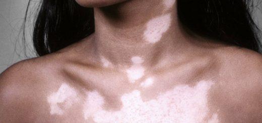 Белые пятна на коже – что это и как лечить?