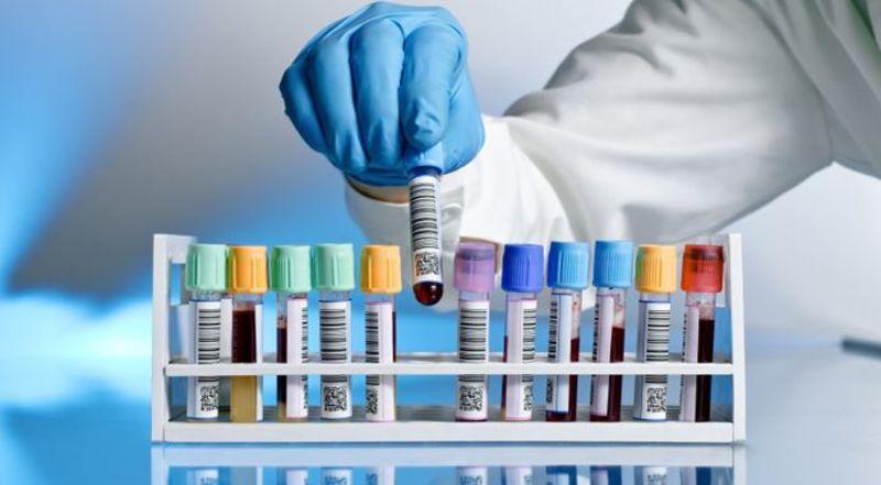 Билирубин в крови повышен: более 10 причин, что это значит, норма у детей, у взрослых женщин и мужчин, что делать, диета, препараты