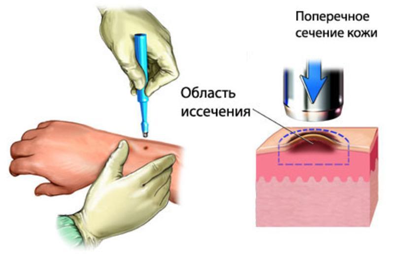 биопсия кожи