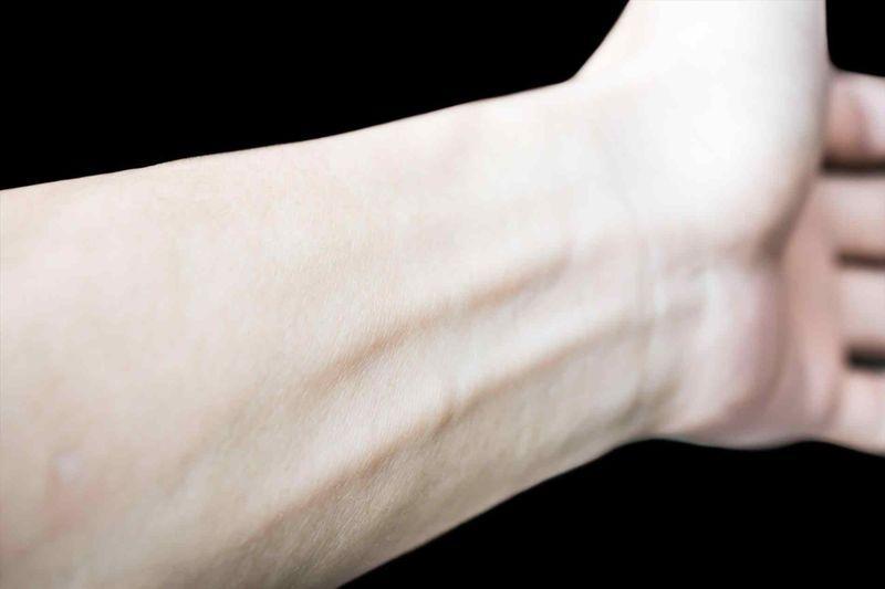 Бледная кожа